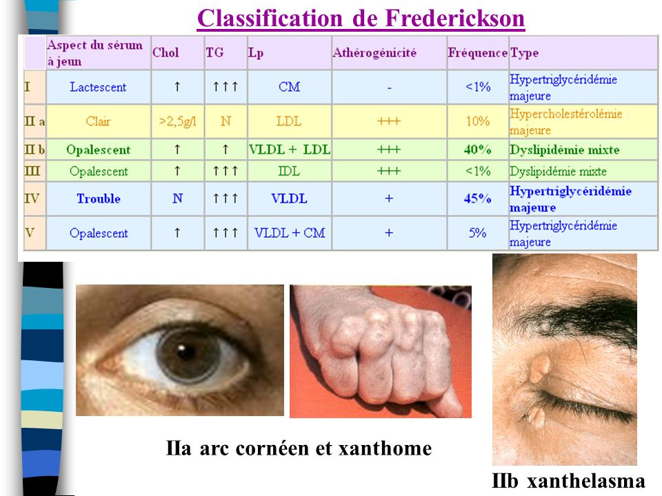 Classification de Frederickson