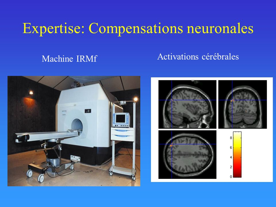 Expertise: Compensations neuronales