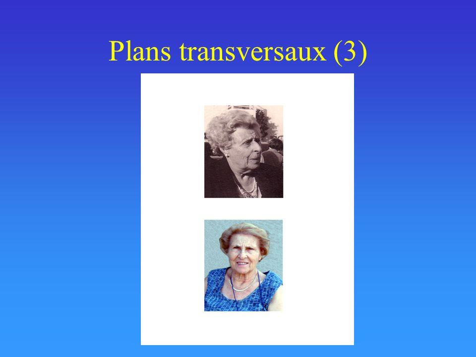Plans transversaux (3)