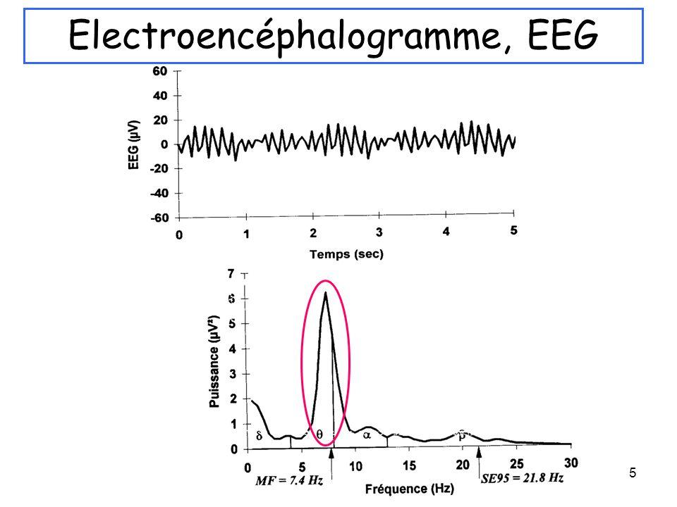 Electroencéphalogramme, EEG