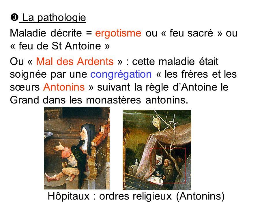 La pathologie Maladie décrite = ergotisme ou « feu sacré » ou « feu de St Antoine »