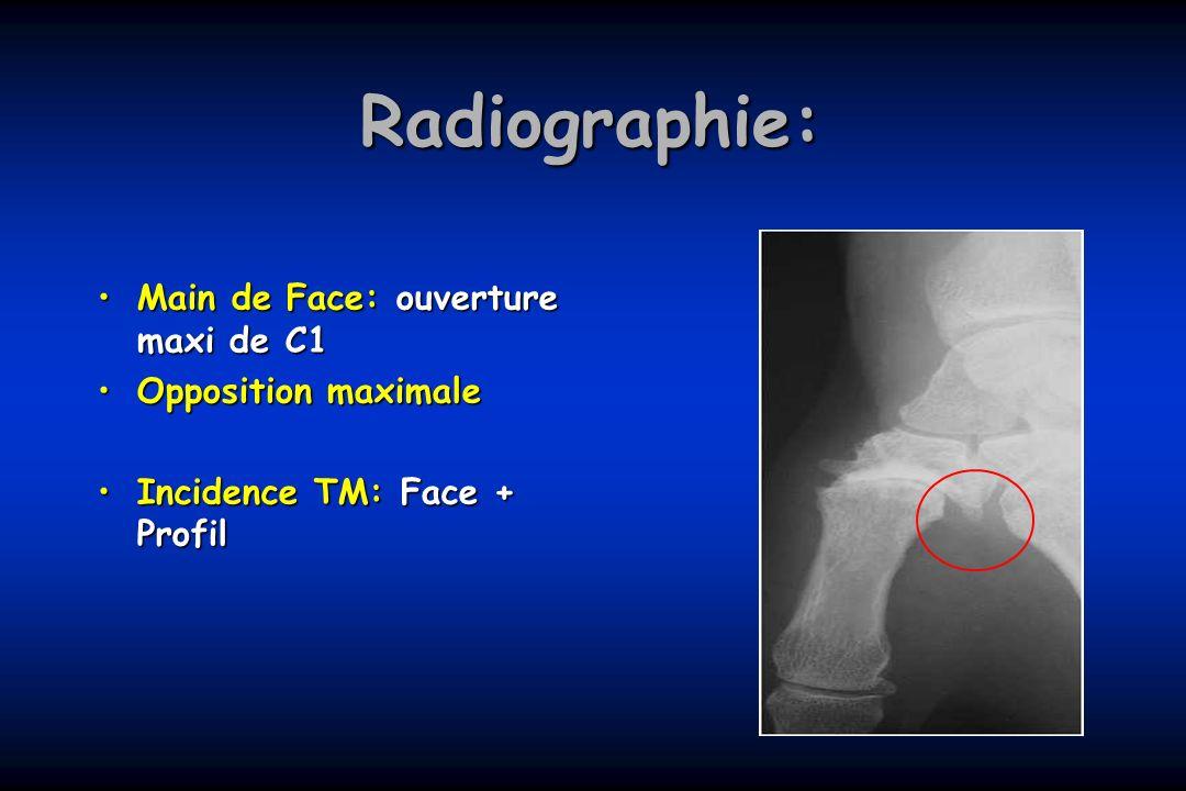 Radiographie: Main de Face: ouverture maxi de C1 Opposition maximale