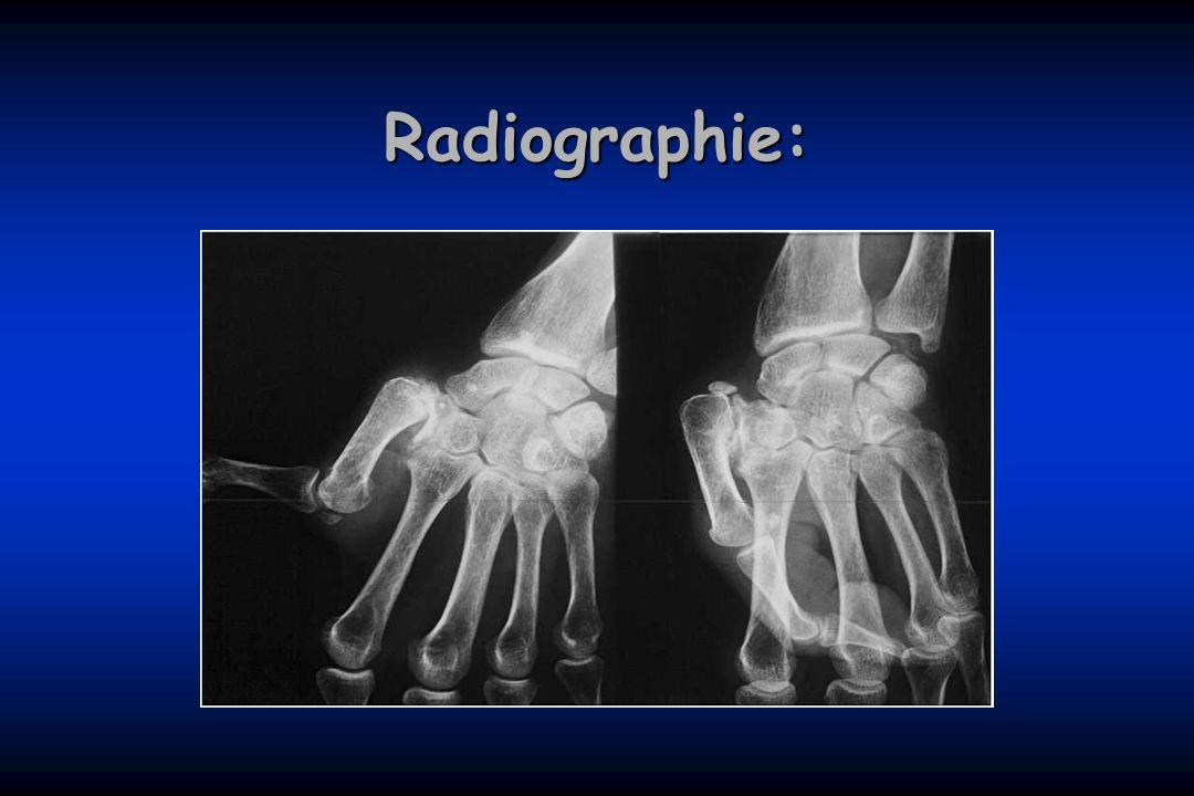 Radiographie: