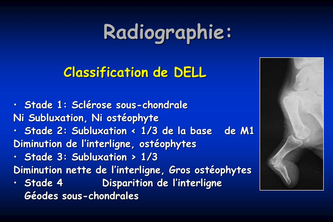 Classification de DELL