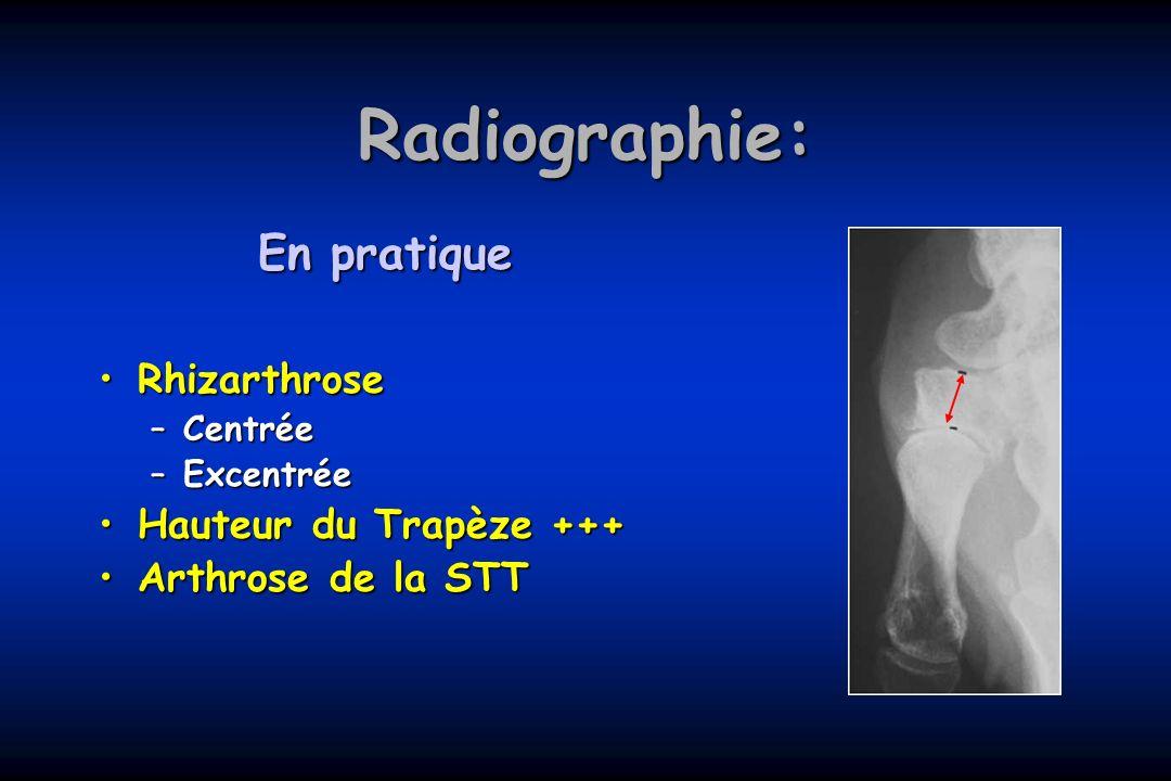 Radiographie: En pratique Rhizarthrose Hauteur du Trapèze +++