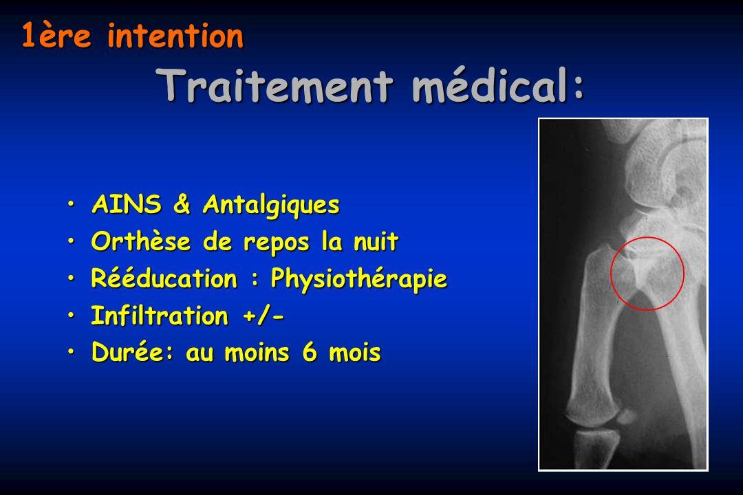 Traitement médical: 1ère intention AINS & Antalgiques