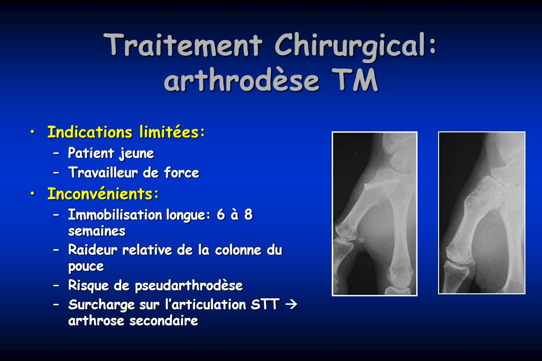 Traitement Chirurgical: arthrodèse TM