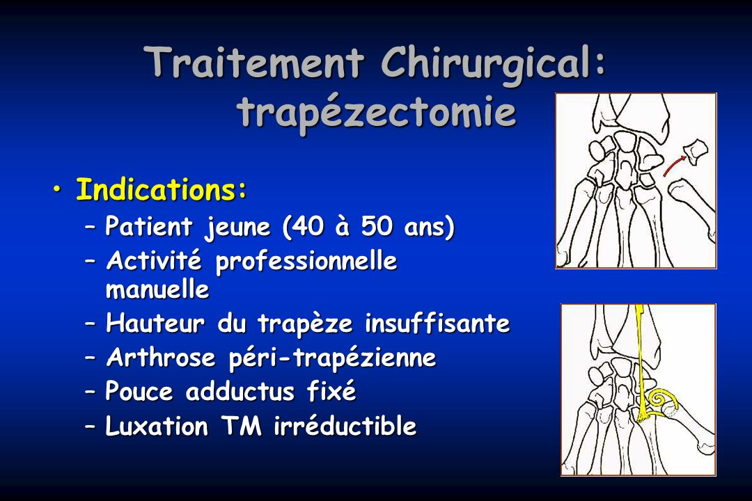 Traitement Chirurgical: trapézectomie