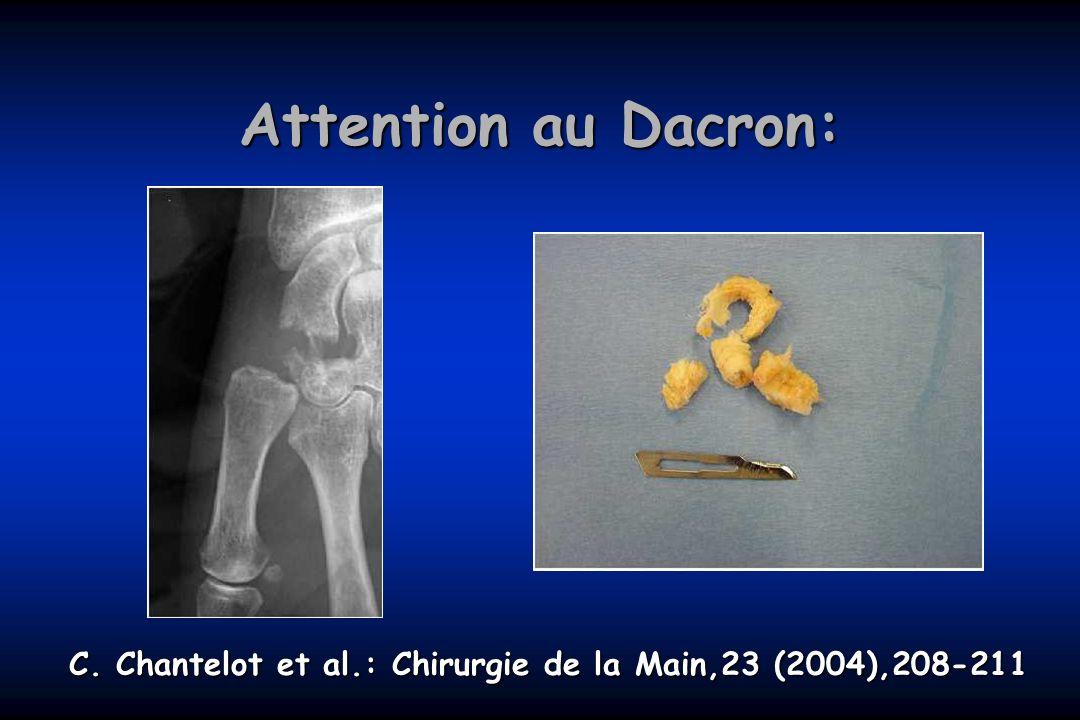 C. Chantelot et al.: Chirurgie de la Main,23 (2004),208-211