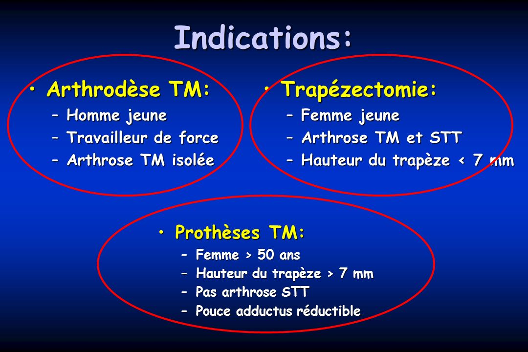 Indications: Arthrodèse TM: Trapézectomie: Prothèses TM: Homme jeune