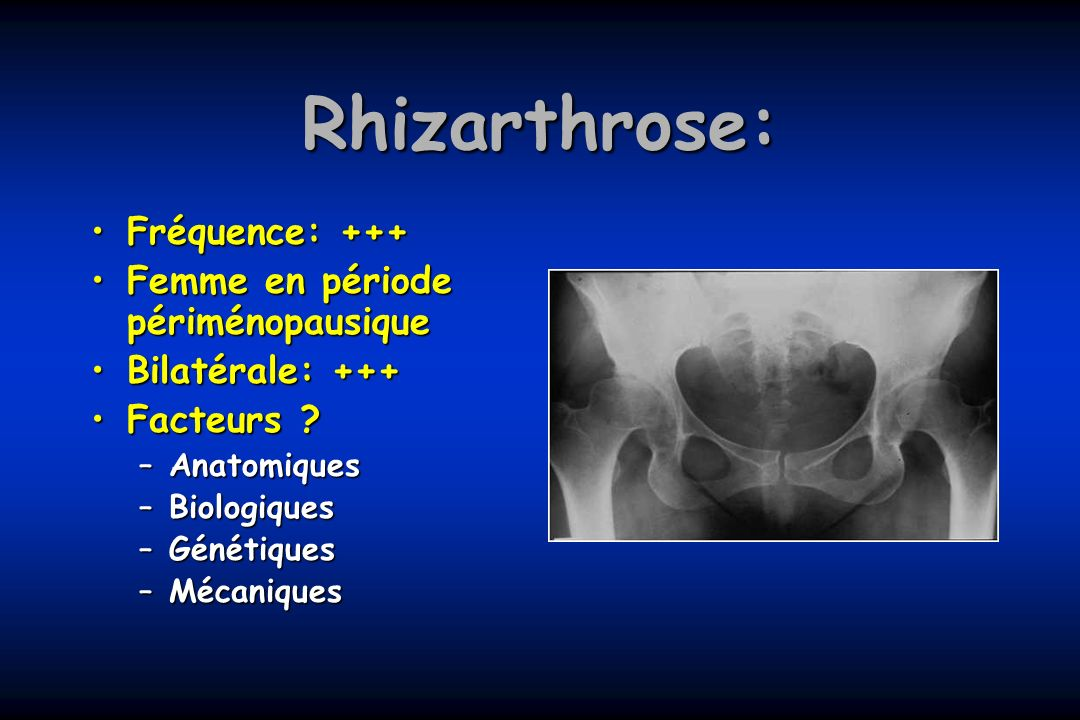Rhizarthrose: Fréquence: +++ Femme en période périménopausique