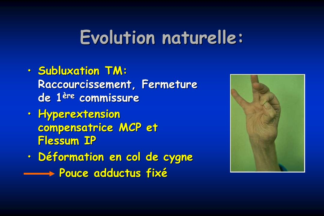 Evolution naturelle:Subluxation TM: Raccourcissement, Fermeture de 1ère commissure. Hyperextension compensatrice MCP et Flessum IP.