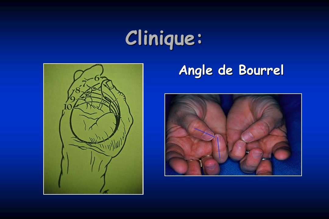 Clinique: Angle de Bourrel