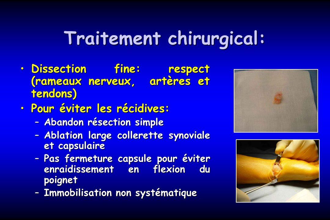 Conduite tenir devant un kyste arthro synovial du - Traitement pour eviter les fausses couches ...