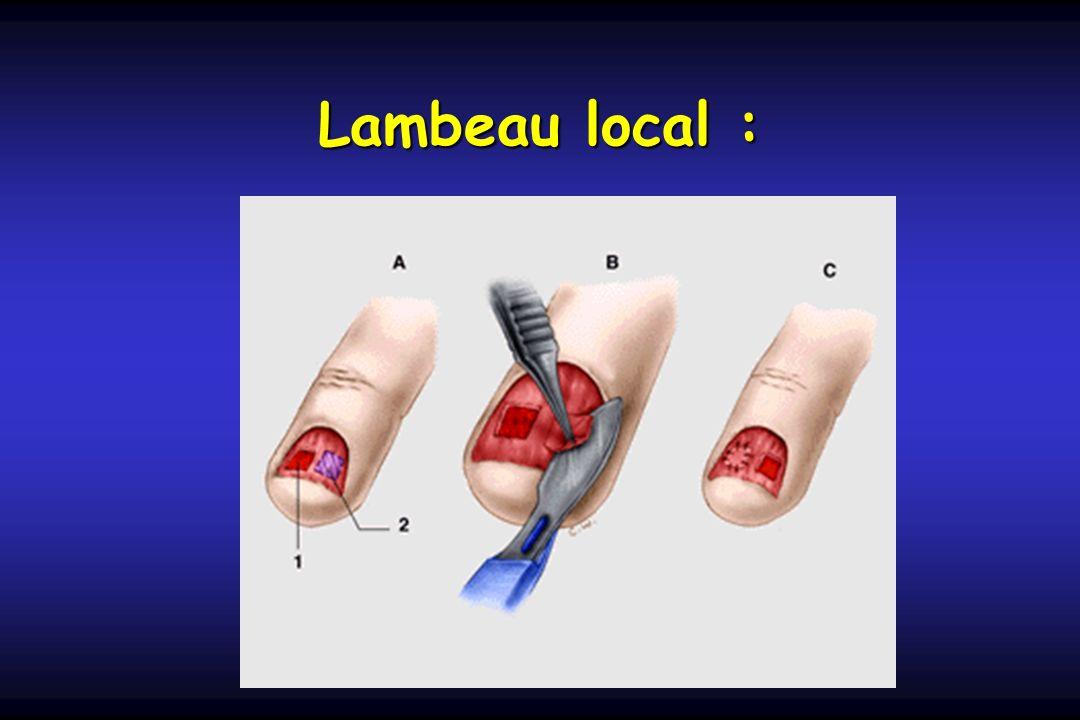 Lambeau local :