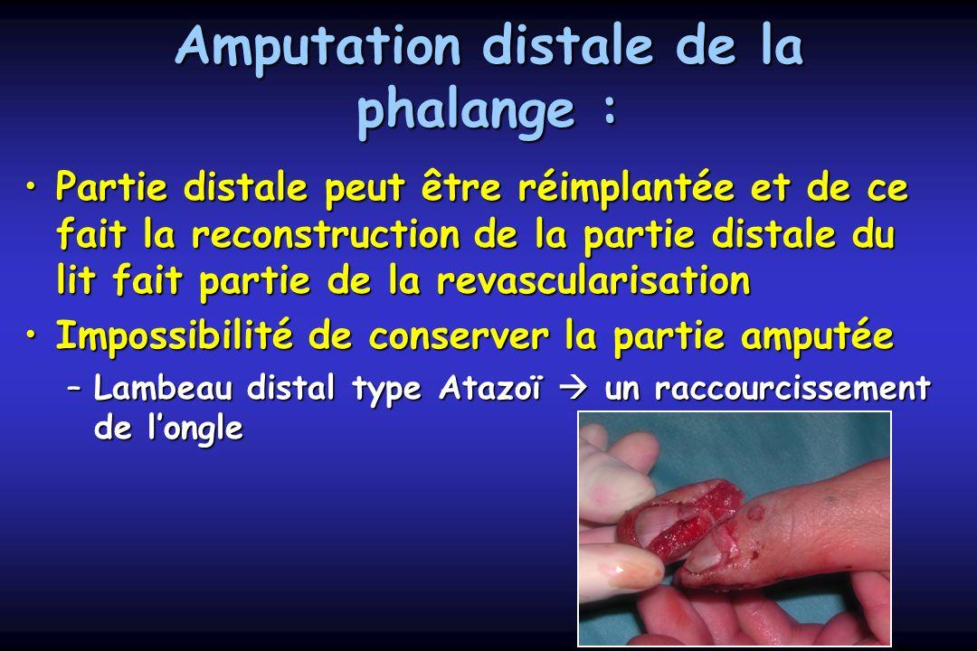 Amputation distale de la phalange :
