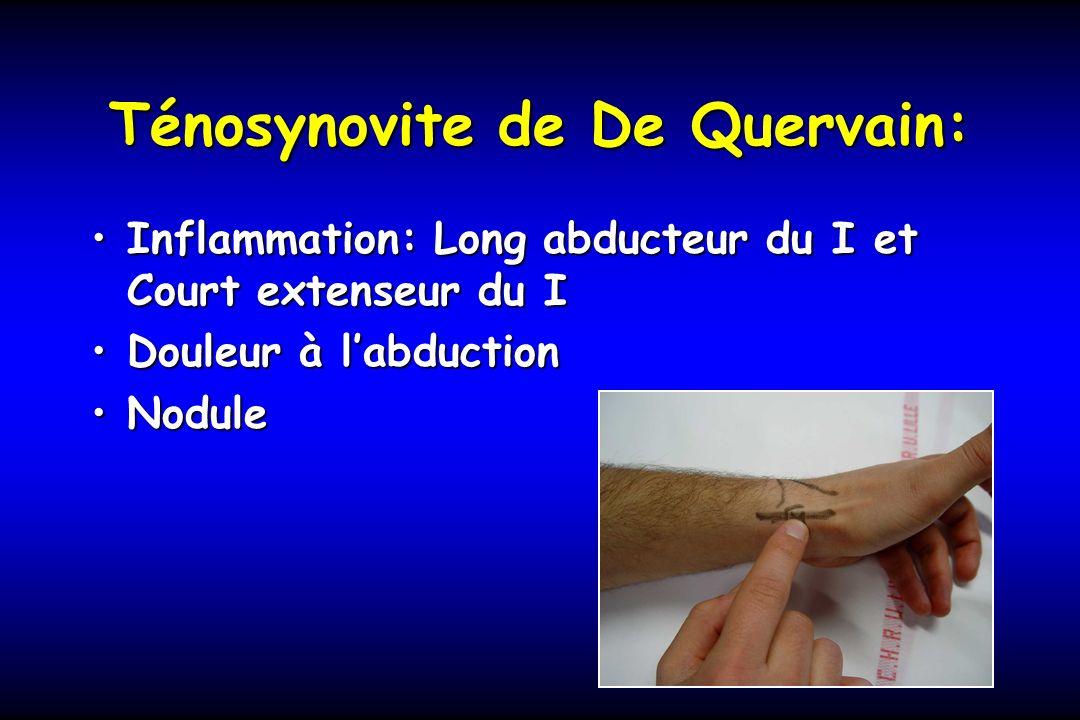 Ténosynovite de De Quervain: