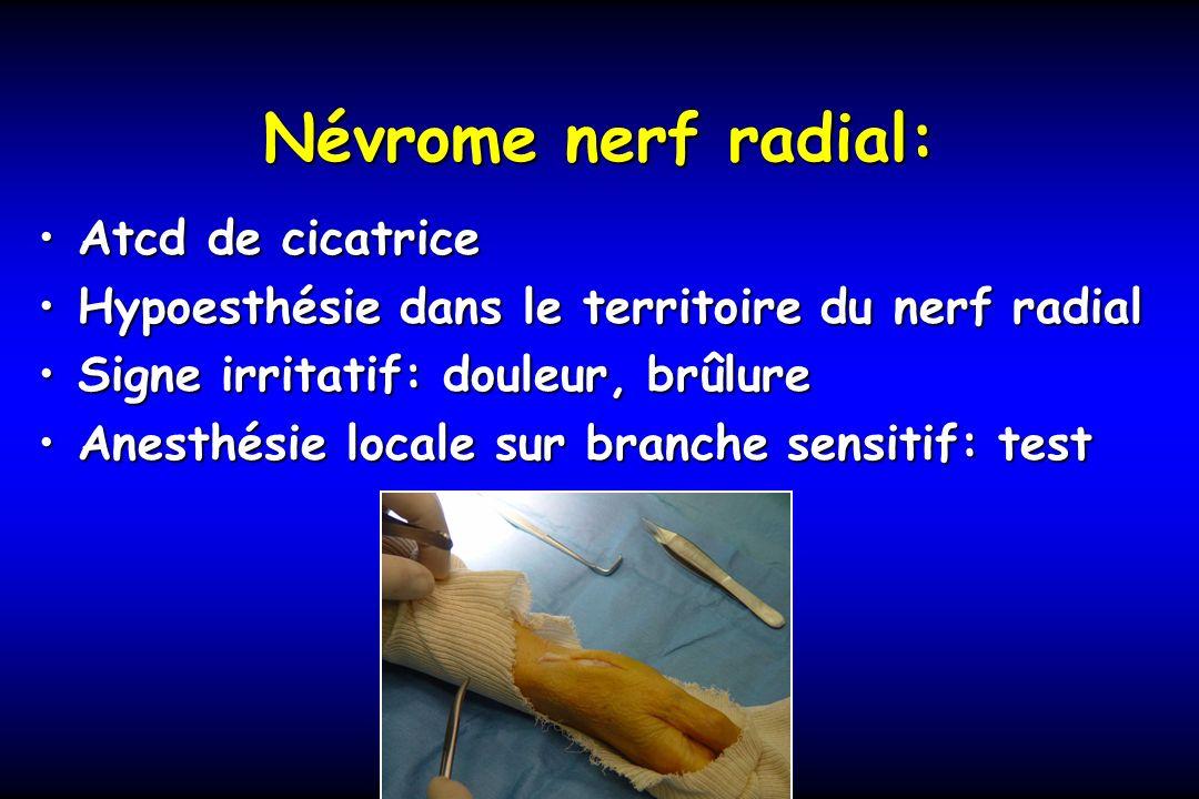 Névrome nerf radial: Atcd de cicatrice