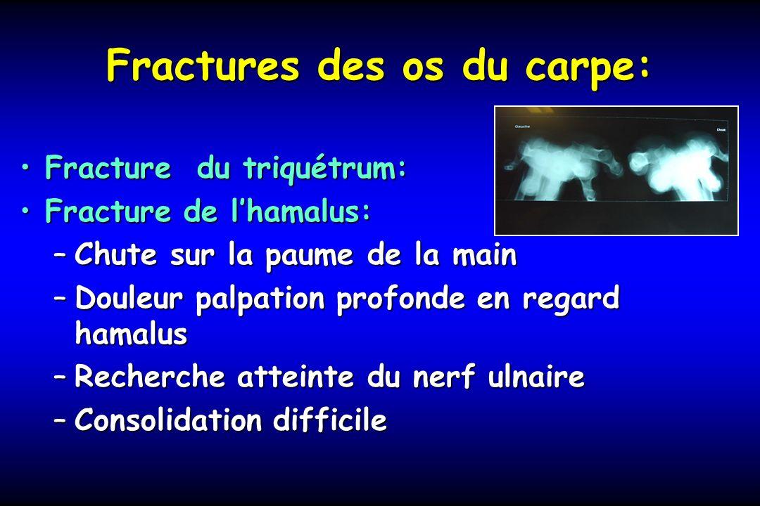 Fractures des os du carpe: