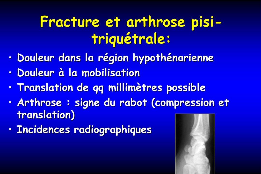 Fracture et arthrose pisi-triquétrale: