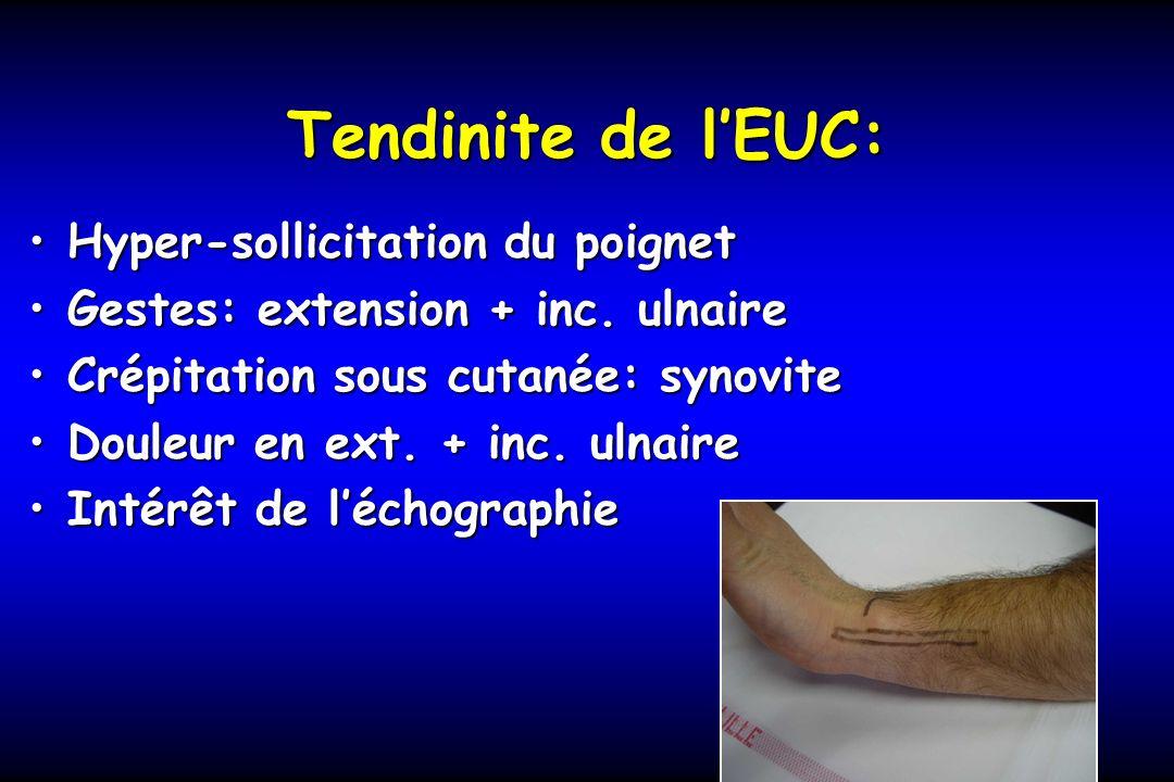 Tendinite de l'EUC: Hyper-sollicitation du poignet