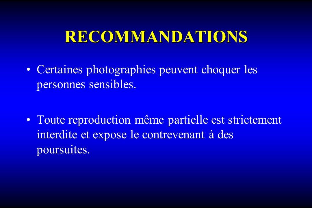 RECOMMANDATIONS Certaines photographies peuvent choquer les personnes sensibles.