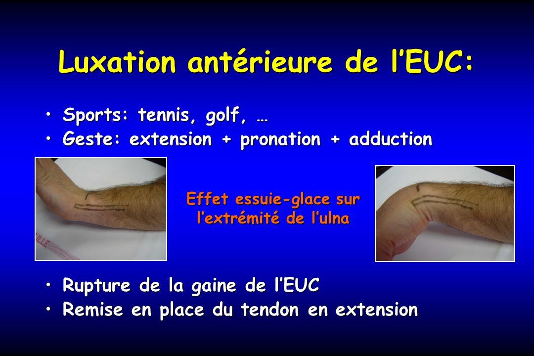 Luxation antérieure de l'EUC: