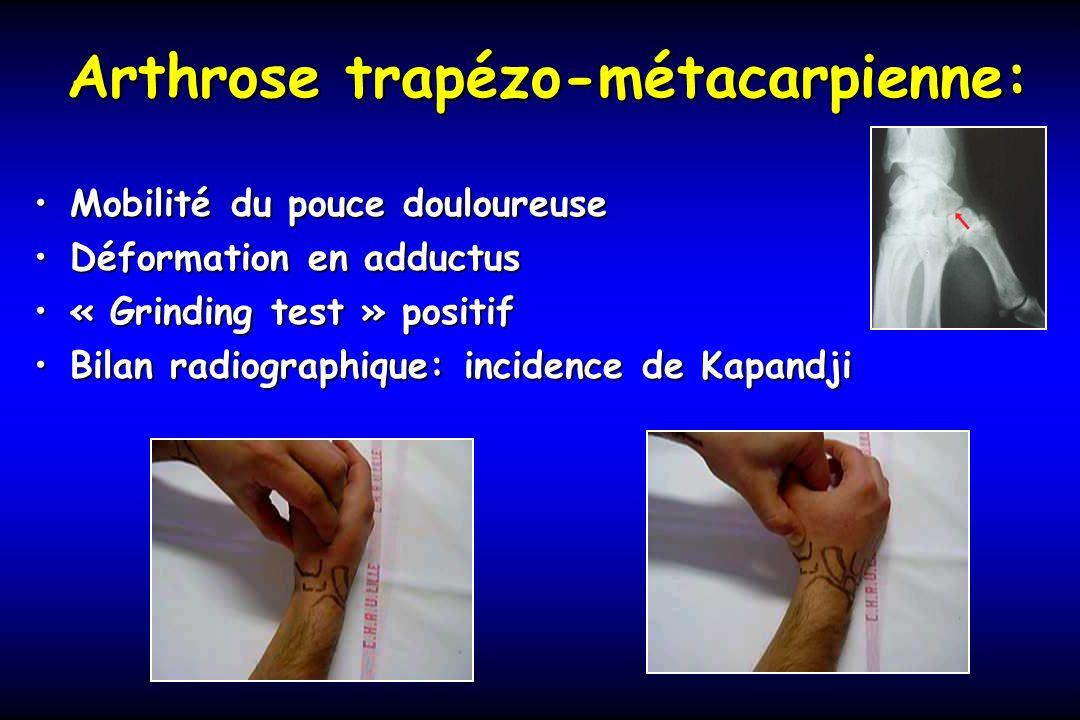 Arthrose trapézo-métacarpienne: