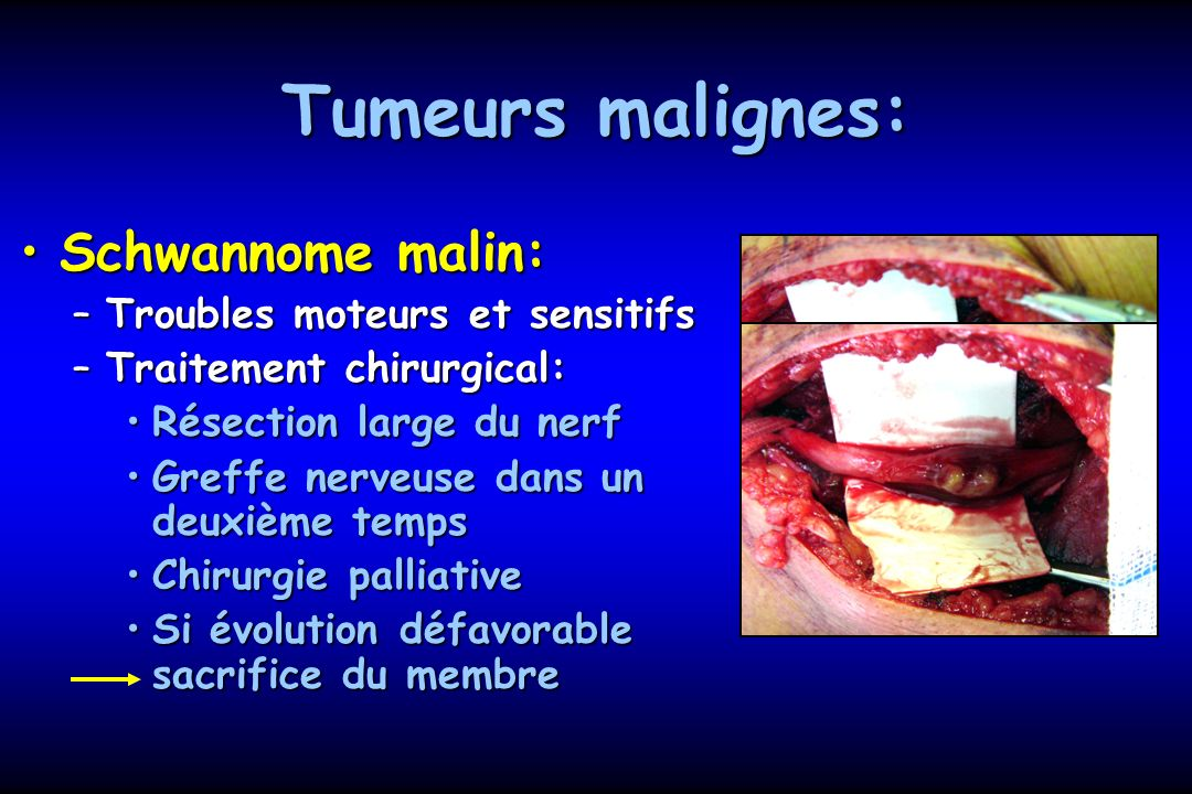 Tumeurs malignes: Schwannome malin: Troubles moteurs et sensitifs