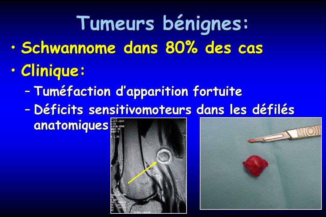 Tumeurs bénignes: Schwannome dans 80% des cas Clinique: