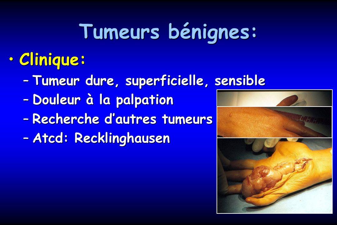 Tumeurs bénignes: Clinique: Tumeur dure, superficielle, sensible