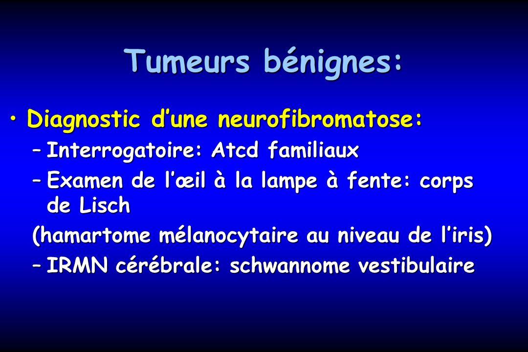 Tumeurs bénignes: Diagnostic d'une neurofibromatose: