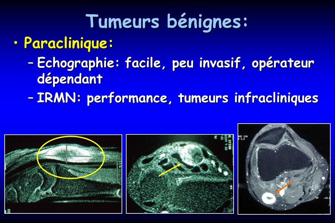 Tumeurs bénignes: Paraclinique: