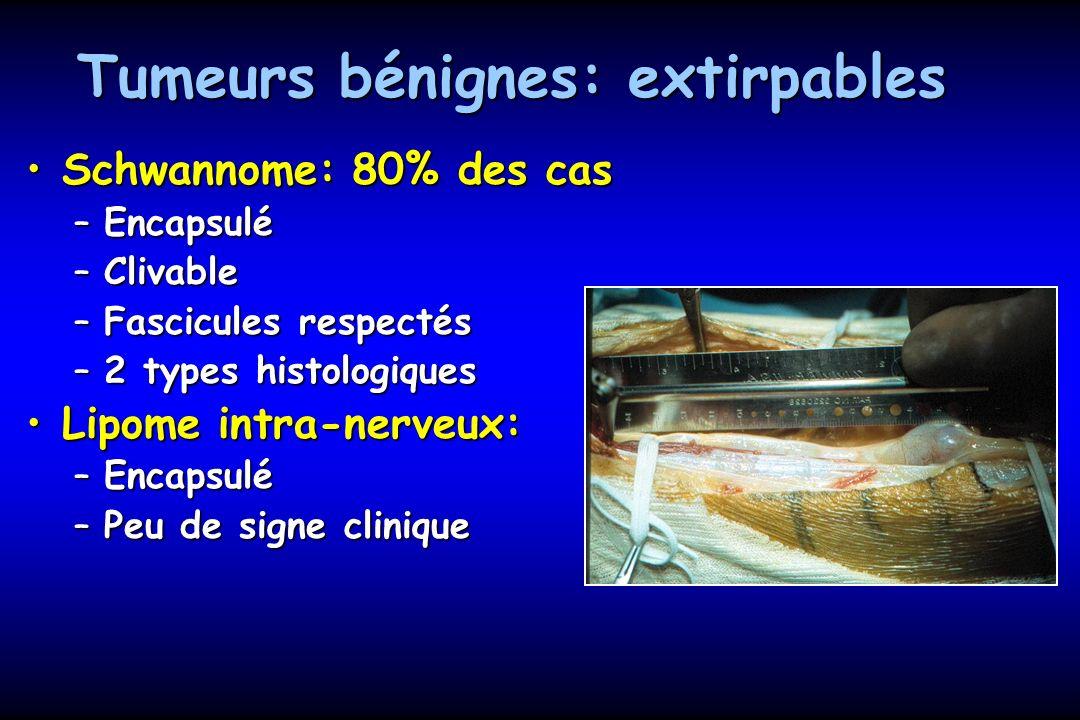 Tumeurs bénignes: extirpables