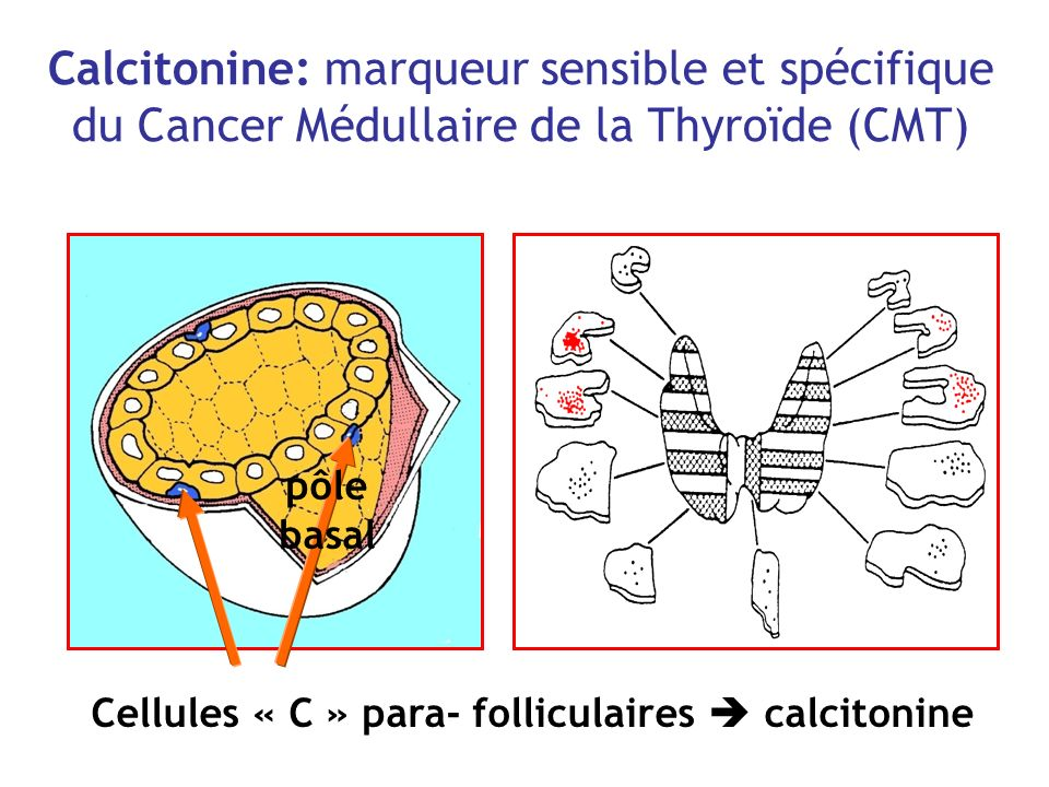 Cellules « C » para- folliculaires  calcitonine