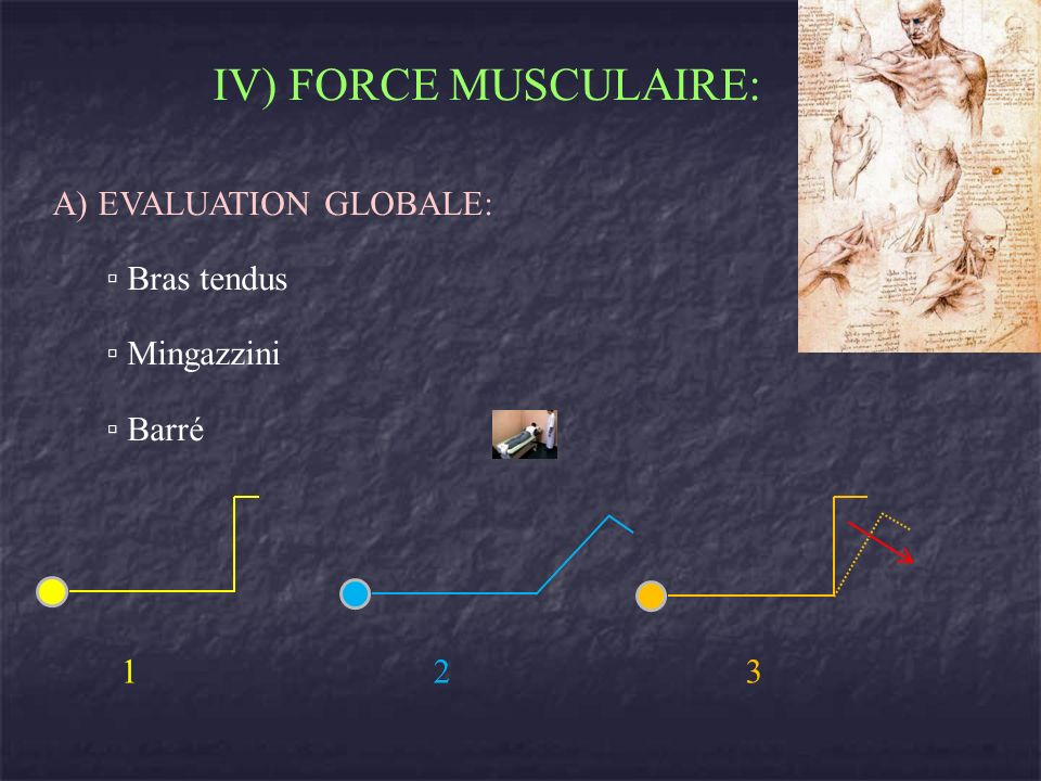 IV) FORCE MUSCULAIRE: A) EVALUATION GLOBALE: ▫ Bras tendus