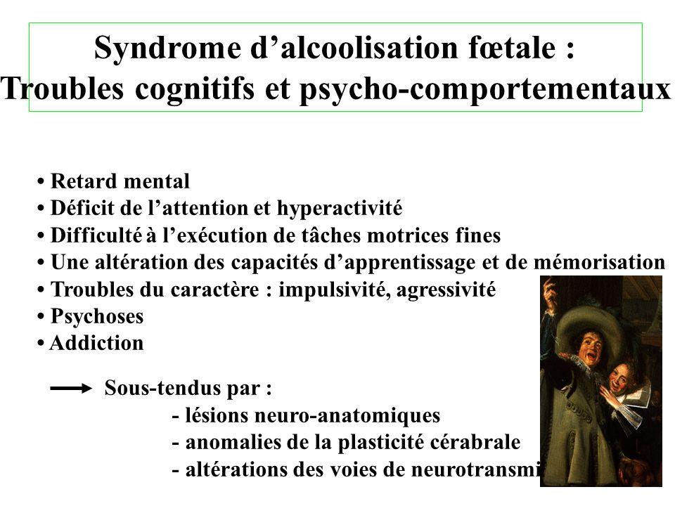 Syndrome d'alcoolisation fœtale :