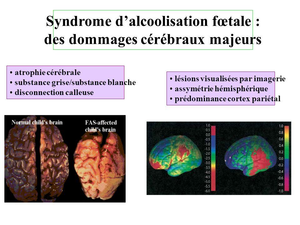 Syndrome d'alcoolisation fœtale : des dommages cérébraux majeurs