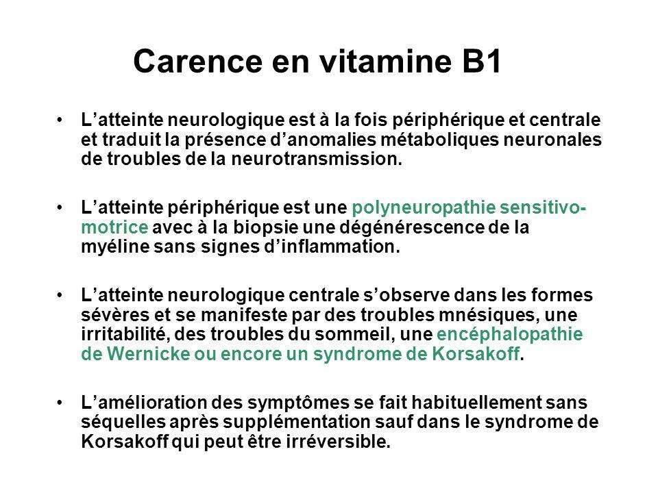 Carence en vitamine B1