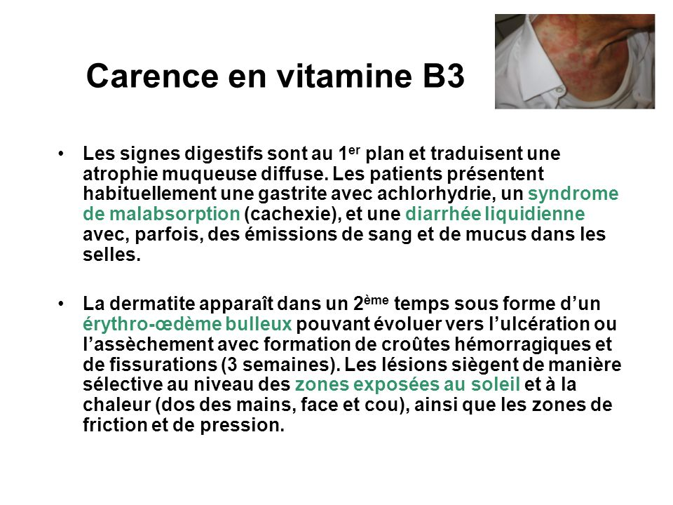 Carence en vitamine B3