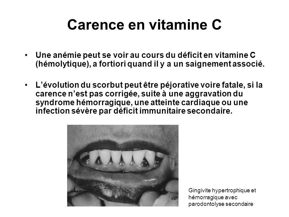 Carence en vitamine C Une anémie peut se voir au cours du déficit en vitamine C (hémolytique), a fortiori quand il y a un saignement associé.