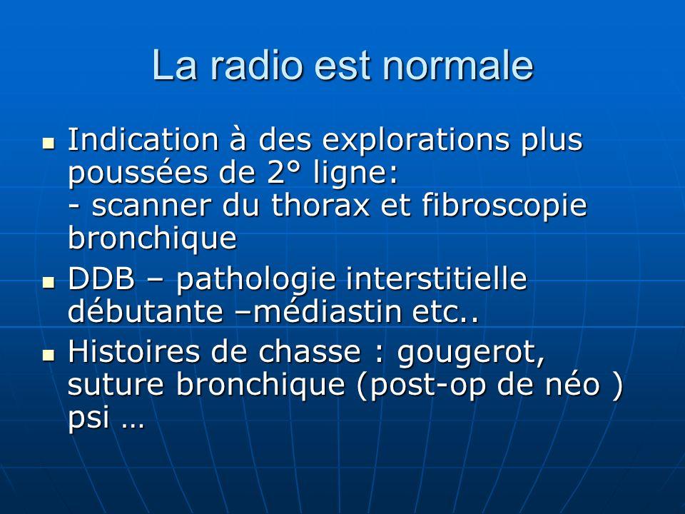 La radio est normale Indication à des explorations plus poussées de 2° ligne: - scanner du thorax et fibroscopie bronchique.