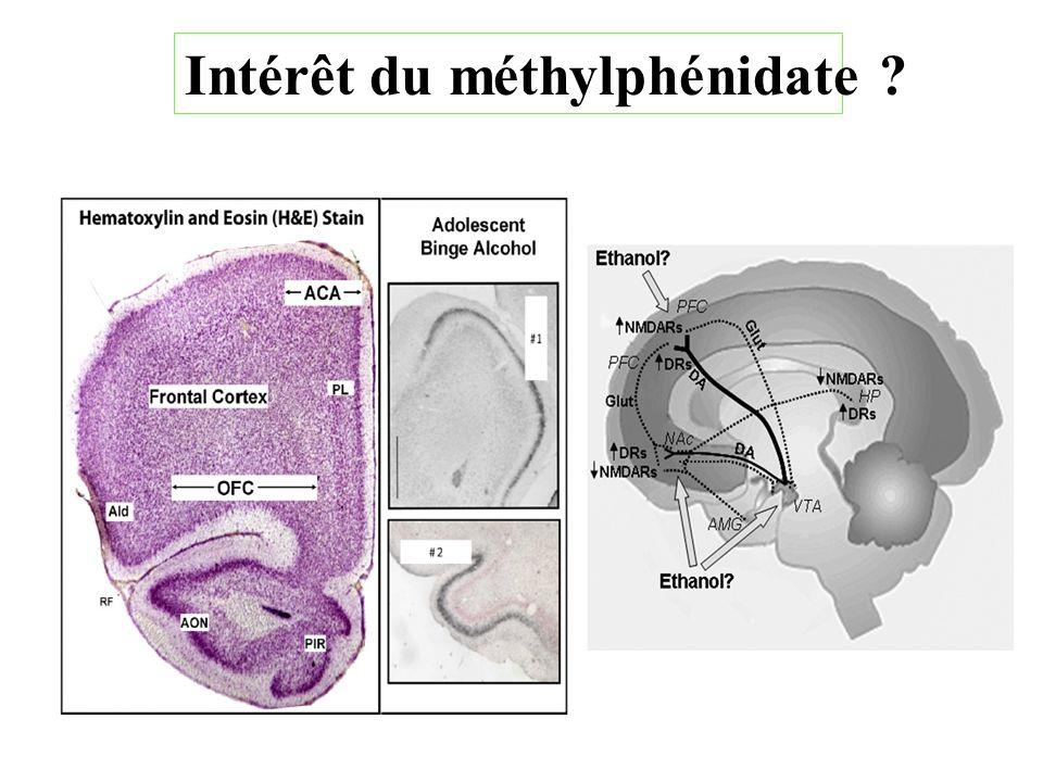 Intérêt du méthylphénidate