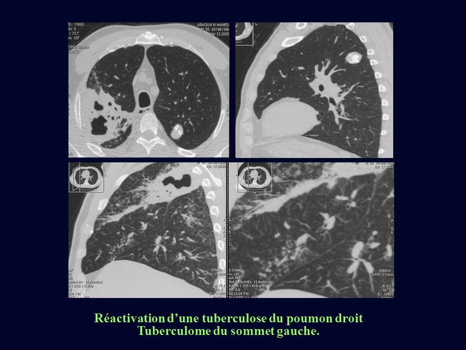 Réactivation d'une tuberculose du poumon droit