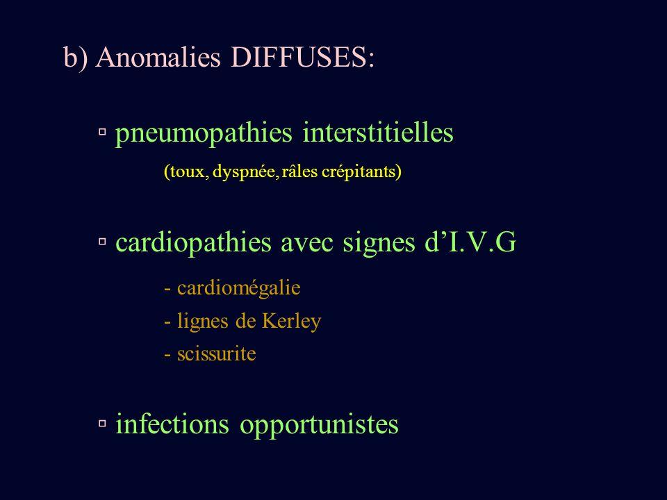 b) Anomalies DIFFUSES: