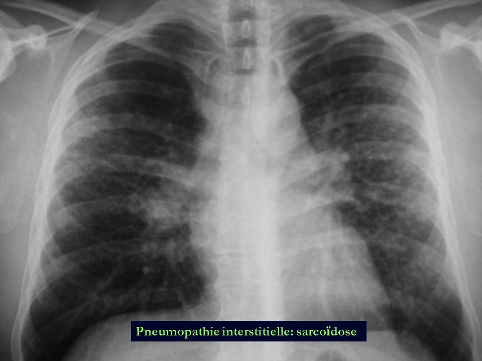 Pneumopathie interstitielle: sarcoïdose