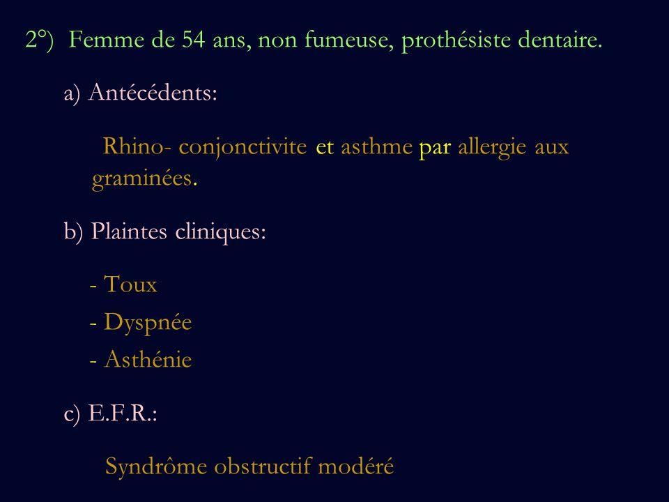 2°) Femme de 54 ans, non fumeuse, prothésiste dentaire.
