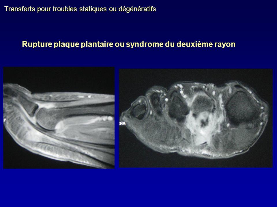 Rupture plaque plantaire ou syndrome du deuxième rayon