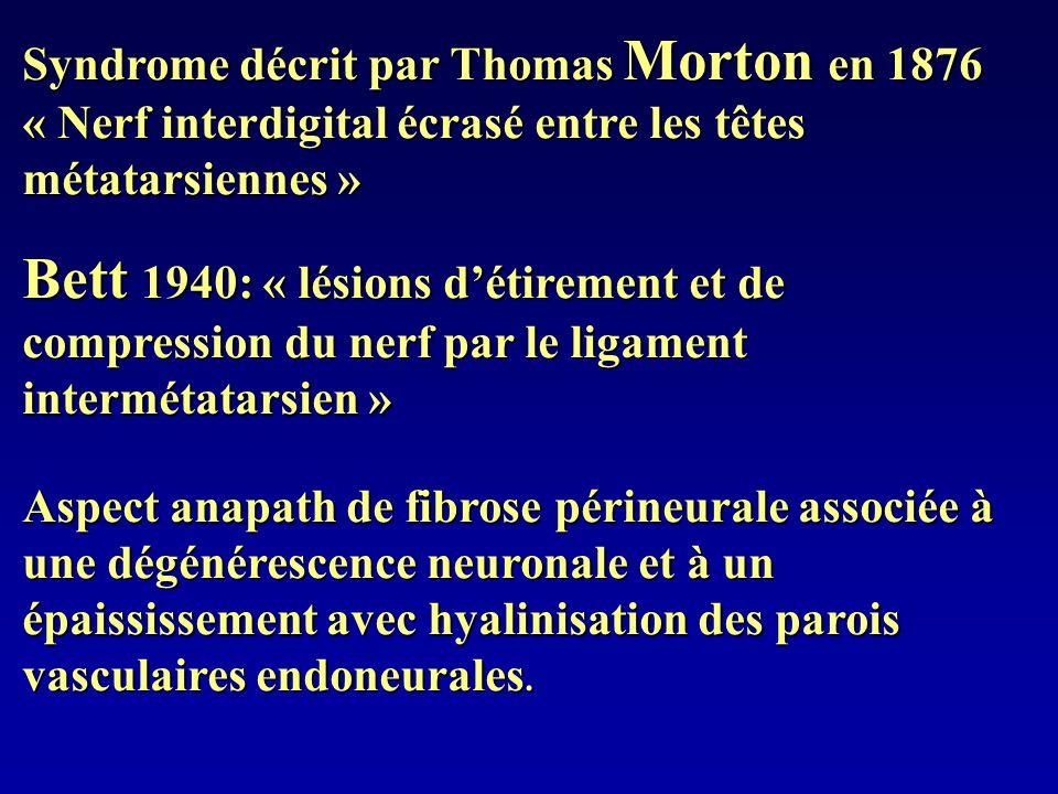 Syndrome décrit par Thomas Morton en 1876 « Nerf interdigital écrasé entre les têtes métatarsiennes »
