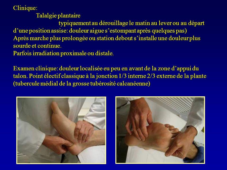 Clinique: Talalgie plantaire.